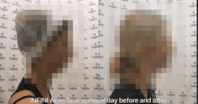 NextMotion Leaked Sensitive Plastic Surgery Images Online Via an Unsecured Database